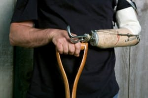 Man With Amputated Left Arm Stock Photo