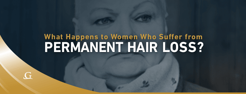 Woman With Permanent Hair Loss Stock Photo