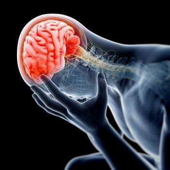 Red brain after brain injury. Our Mobile, Alabama brain injury lawyers can help you get compensation