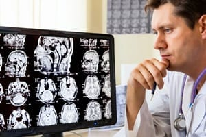 Medical Doctor Examining Brain Scans Stock Photo