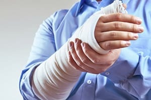 Man With Hand Wrapped In Cast Stock Photo